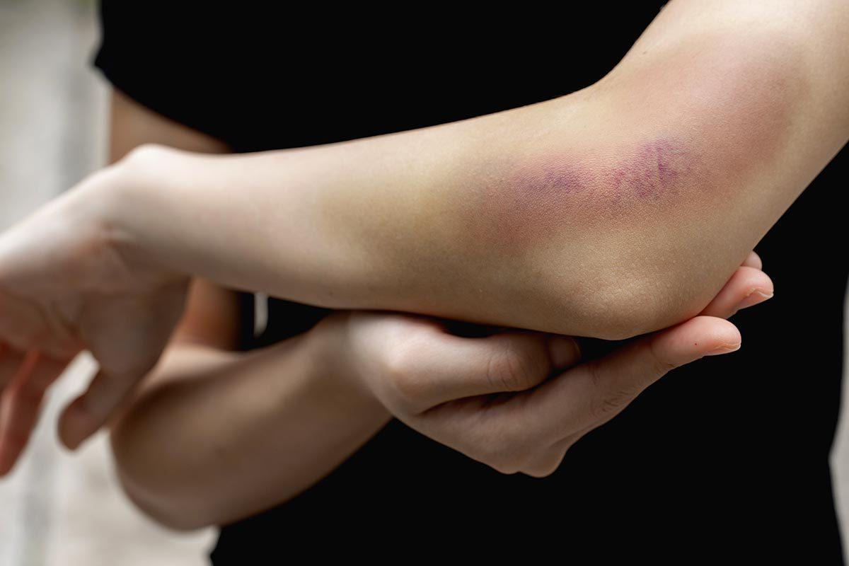 Une ecchymose enflée et douloureuse doit être traitée.