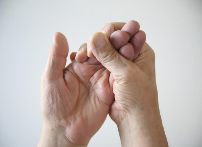 Symptôme d'une hernie discale : vos mains sont engourdies.