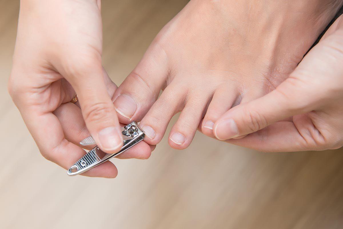 Conseils de podiatre : évitez les ongles incarnés en les coupant correctement.