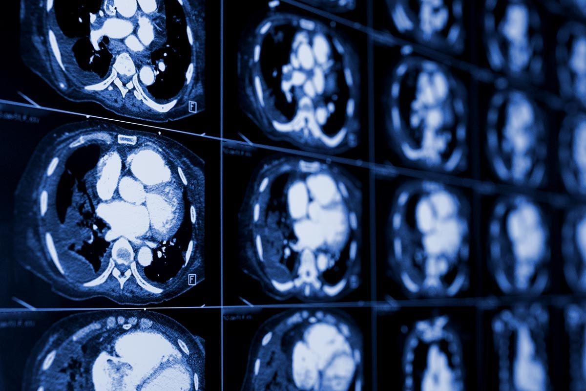 Syndrome de Prader-Willi : une IRM est nécessaire pour établir un diagnostic.