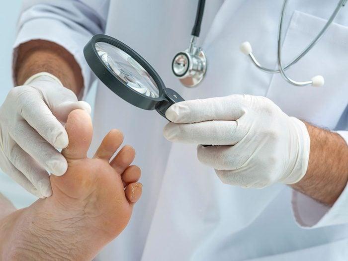 Des maladies peuvent se traduire par des symptômes au niveau des ongles.
