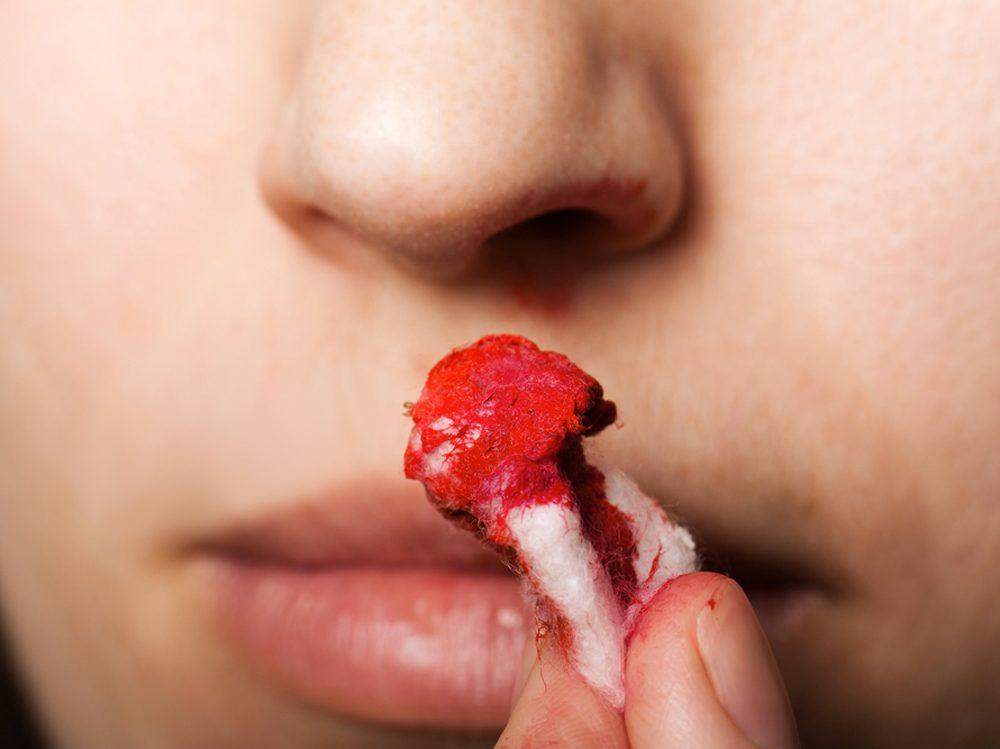 Plusieurs raisons peuvent expliquer le saignement du nez.