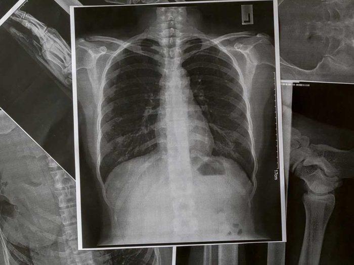 La pneumonie est-elle contagieuse?