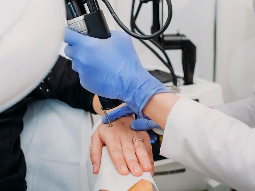 Surveillez surtout vos mains et vos pieds pour détecter un cancer de la peau.