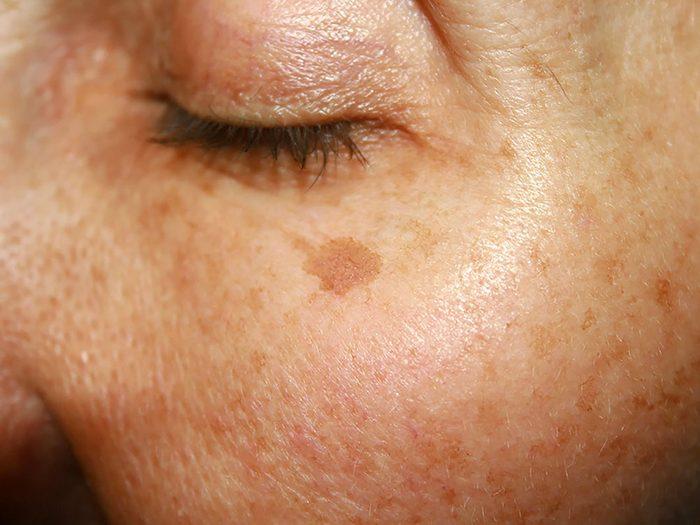 Cancer de la peau: les mélanomes ne sont pas toujours colorés.