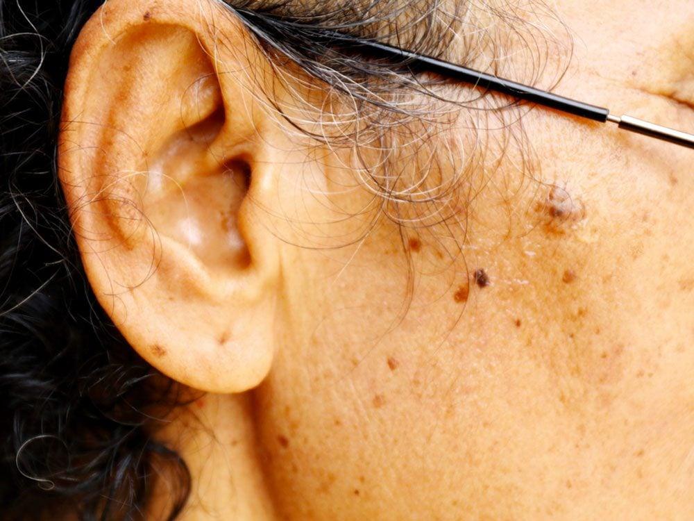 Surveillez les autres irrégularités de la peau pour détecter le cancer de la peau.
