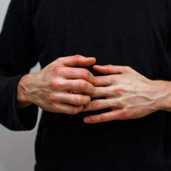 12 problèmes de santé que vous croyez contagieux (mais qui ne le sont pas!)