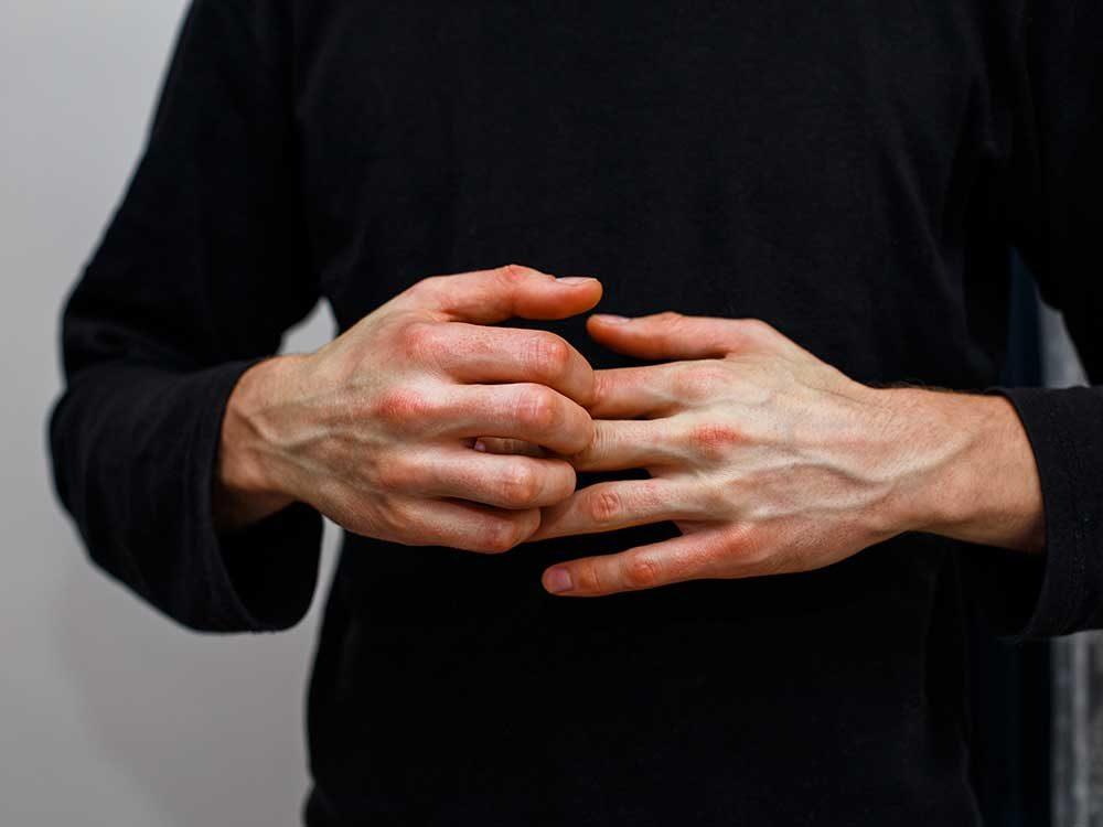 Le psoriasis n'est pas contagieux!