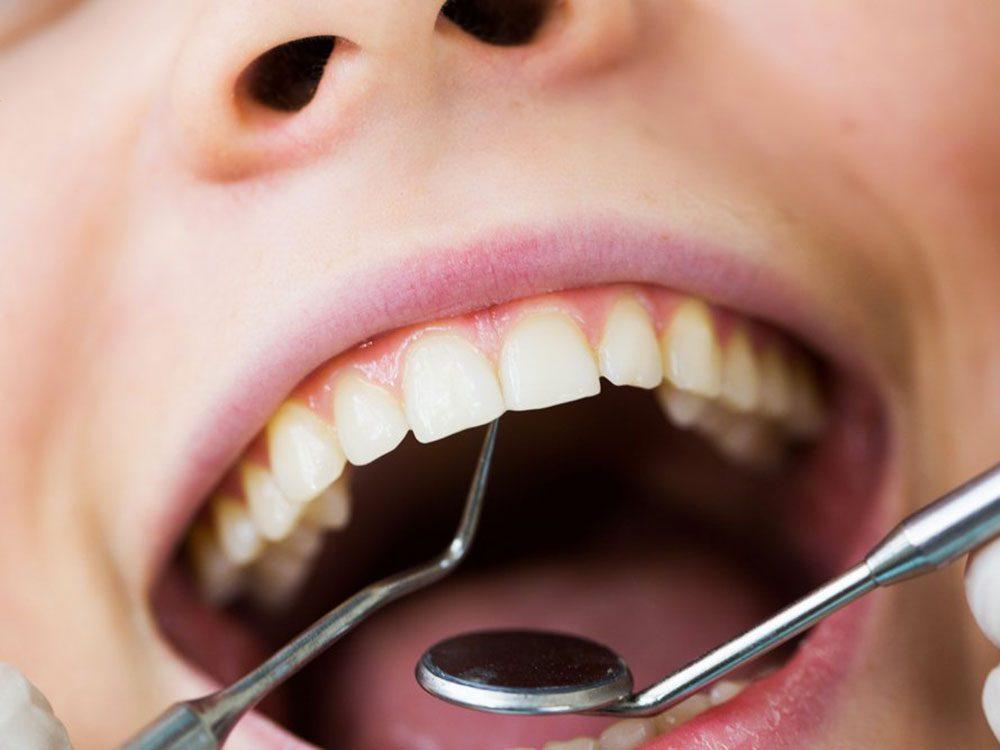 Signification des rêves : Vos dents se mettent à tomber.