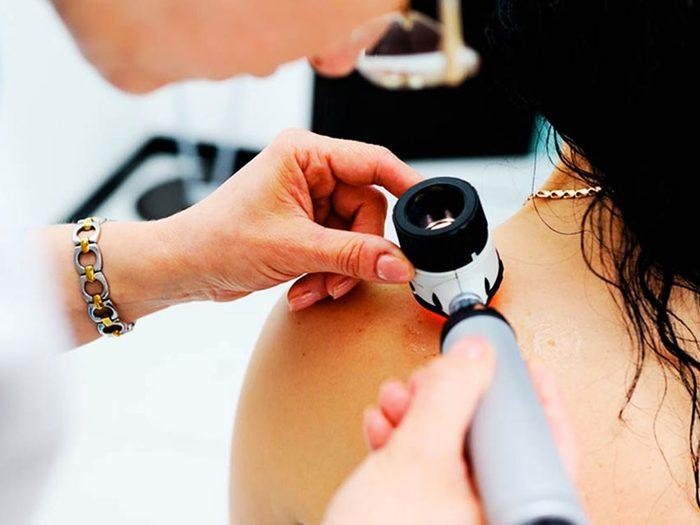 Il existe plusieurs types de cancer de la peau.