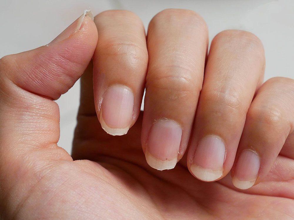 Si votre peau qui démange et vos ongles cassants vous gâchent la vie c'est que vous manquez de calcium.