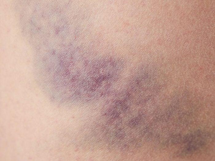 Trop d'ecchymoses qui apparaissent sans raison peuvent être un symptôme de cancer du sang.