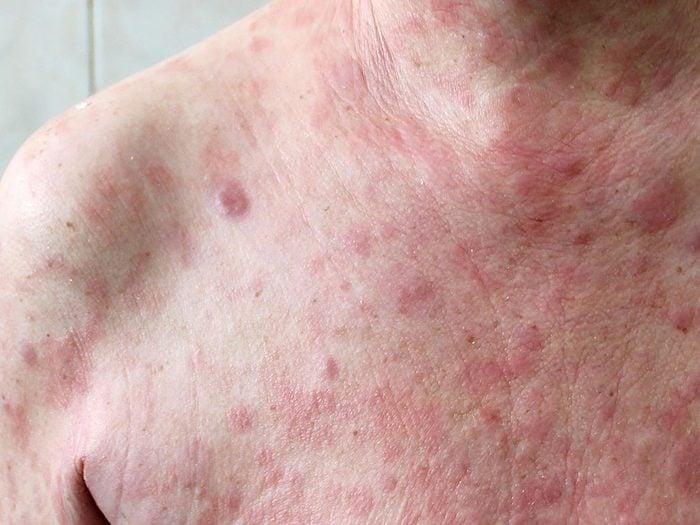Le cancer du sang peut donenr au corps une apparence squameuse accompagnée de démangeaisons.