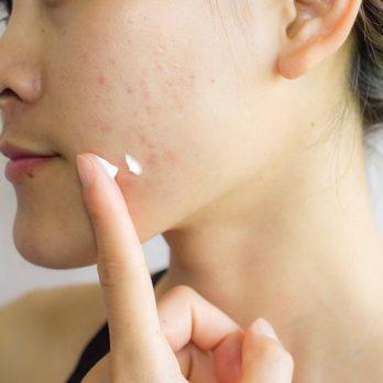 Conseils de dermatologues pour se débarrasser des cicatrices d'acné