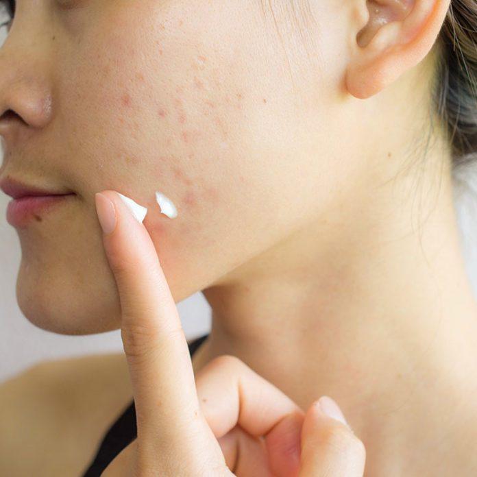 Se débarrasser des cicatrices d'acné