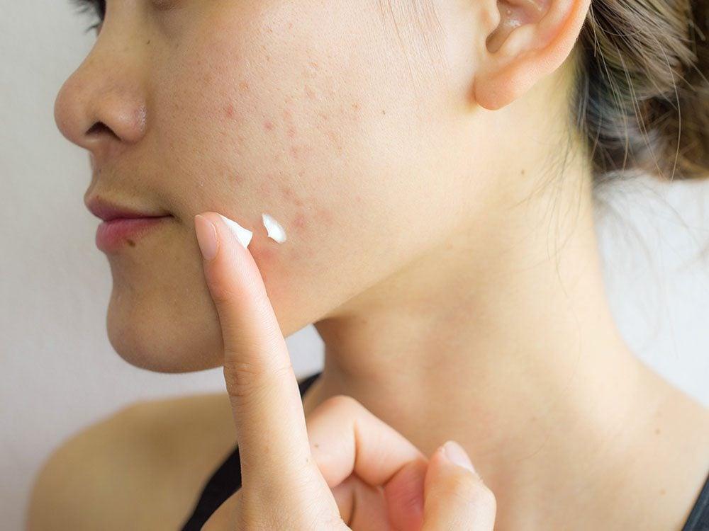 La prise de vitamines est conseillée pour se débarrasser des cicatrices d'acné.