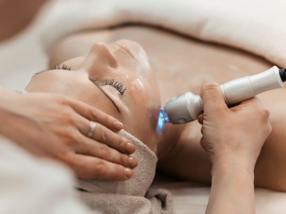 Le resurfaçage au laser est une solution face aux problèmes des cicatrices d'acné.