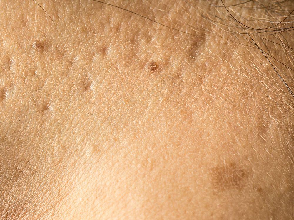 Il est possible de combler les cicatrices d'acné.
