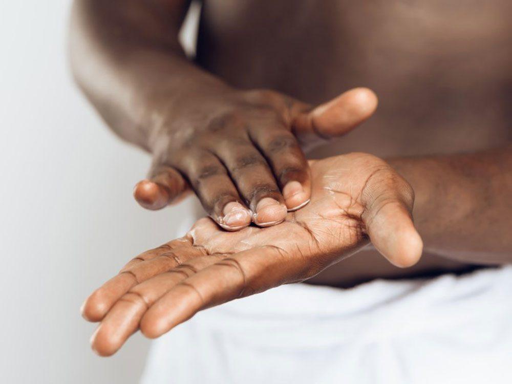 La prévention est aussi importante pour les cicatrices d'acné.