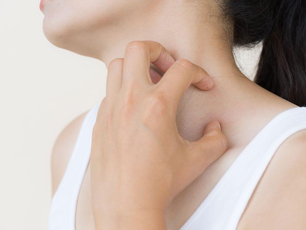 L'urticaire est une irritation de la peau qui peut être aiguë ou chronique.