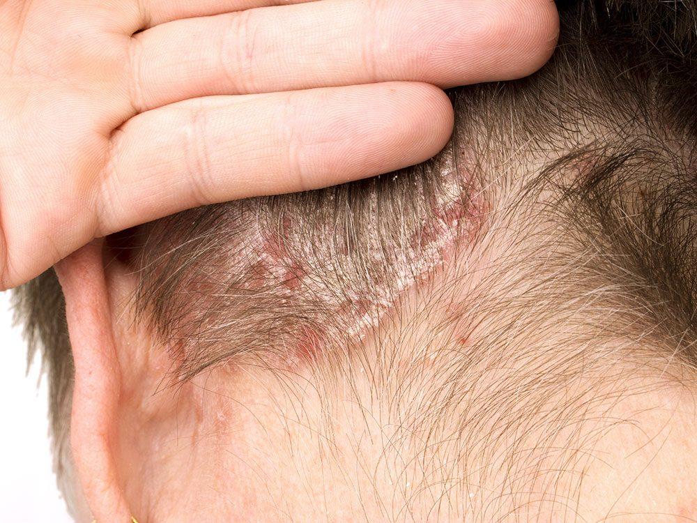 Irritation de la peau: les plaques rouges et écailleuses du psoriasis peuvent être prurigineuses ou douloureuses.