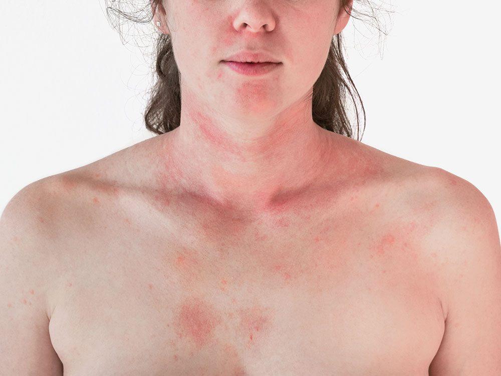 La rosacée est une irritation de la peau.