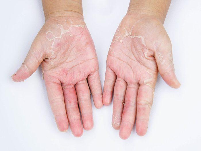 La dermatite de contact ets une irritation de la peau.