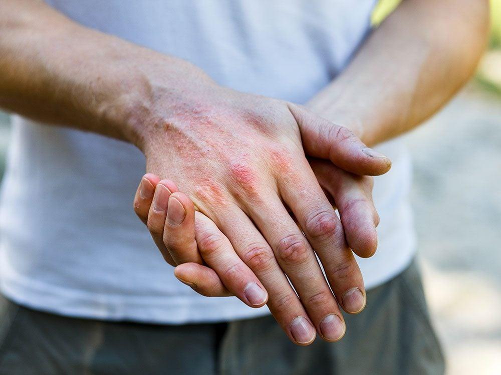 L'eczéma est une irritation de la peau qui produit des plaques rouges, rugueuses, qui démangent beaucoup.