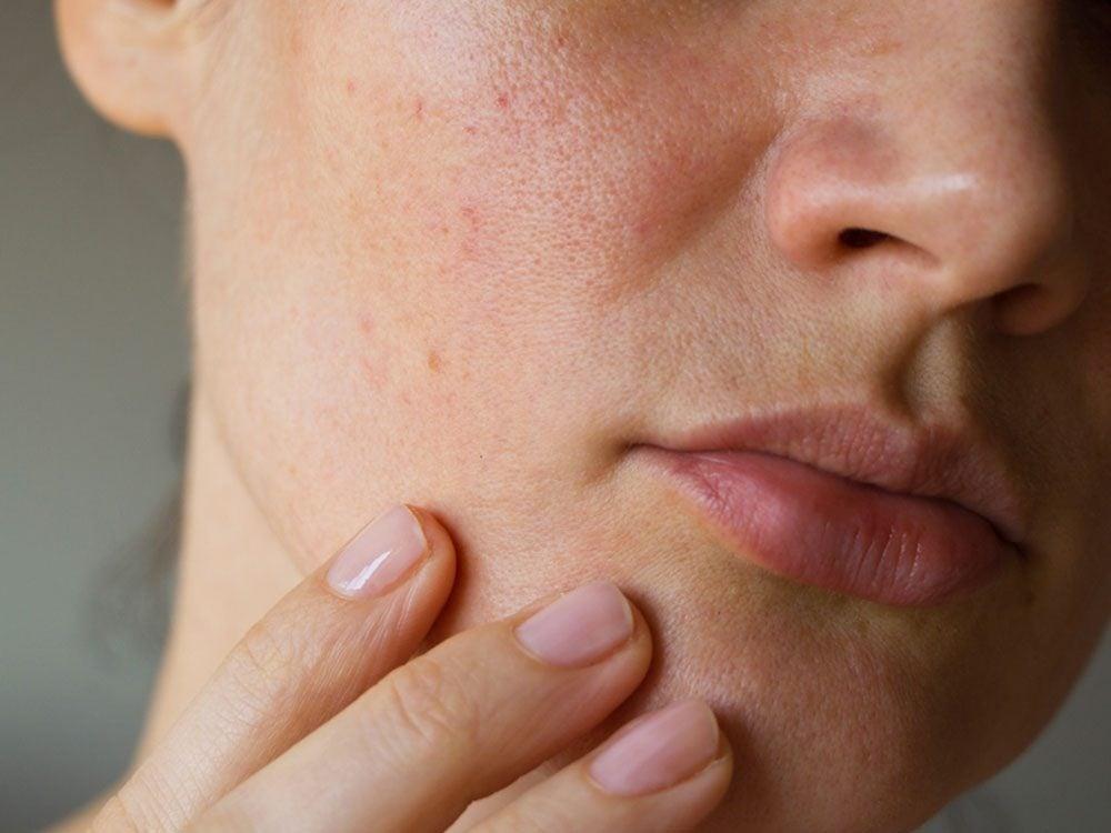 Si votre peau est jaunâtre, c'est un signe du cancer de la vésicule biliaire.