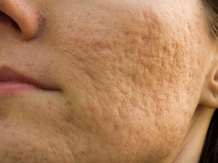 Concoctez une pâte pour combattre l'acné et ses cicatrices.