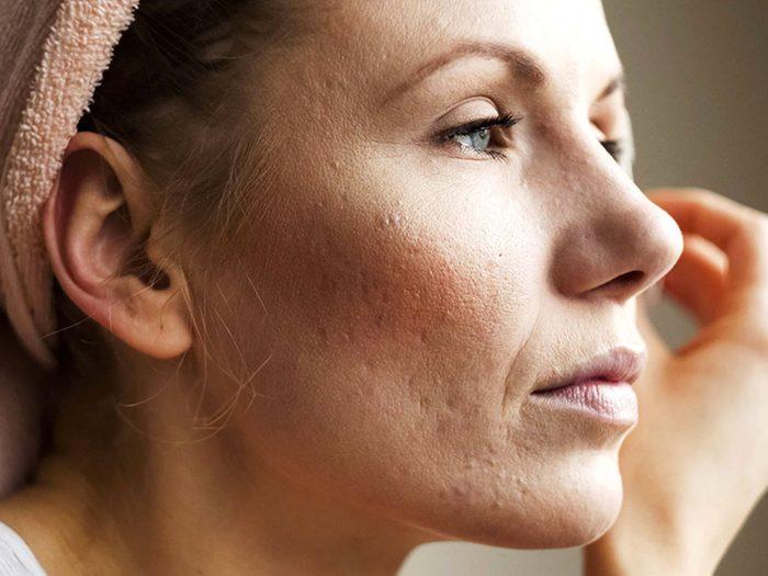 L'acné ne touche pas seulement les adolescents. Comment le combattre?