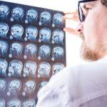 Reconnaître une crise d'épilepsie