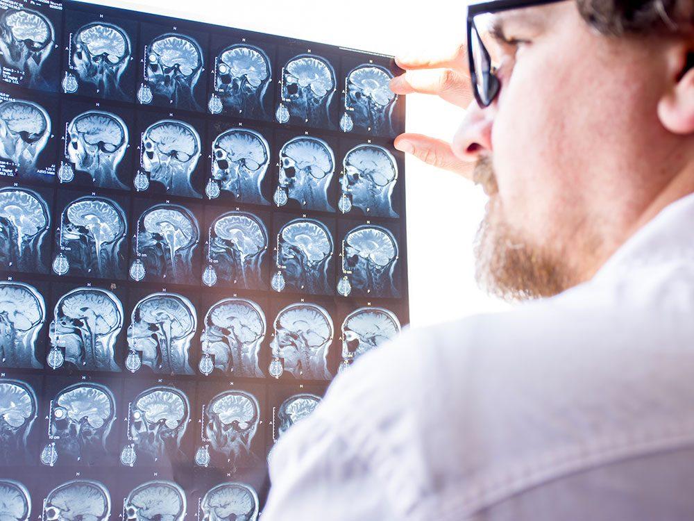Apprendre à reconnaître une crise d'épilepsie.