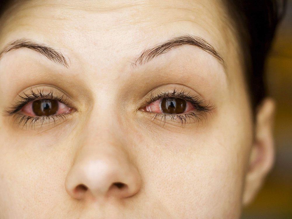 Les massothérapeutes peuvent savoir si vos allergies sont en progression.