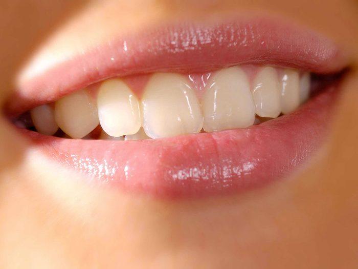 Se blanchir les dents sans débourser grâce aux bananes.