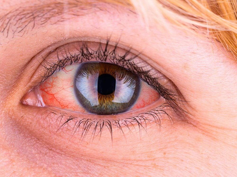 Si vos yeux jaunissent, c'est synonyme que votre foie est en mauvaise santé.