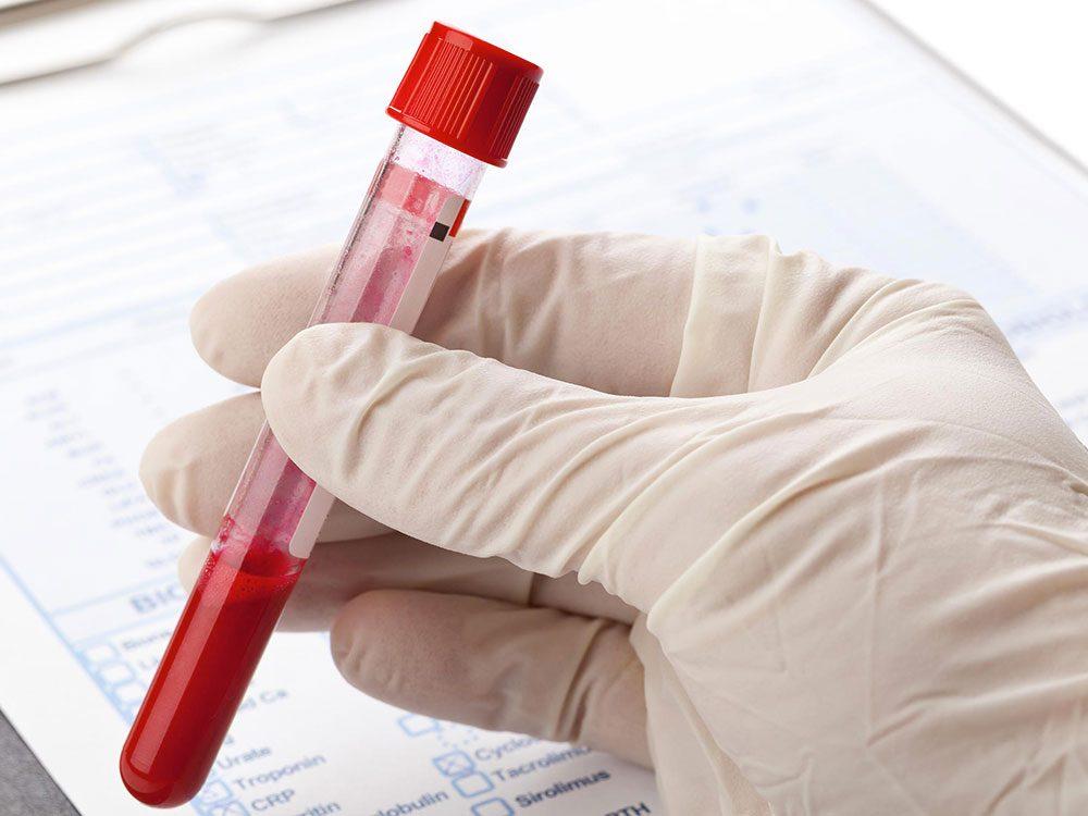 Le sida peut causer une perte de poids inattendue.