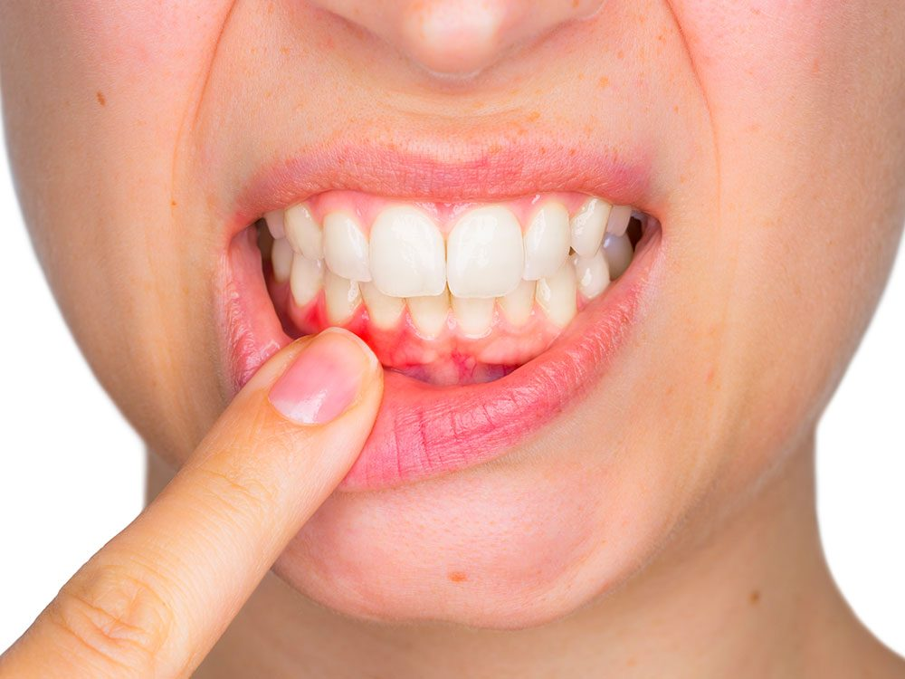 Si sus encías están irritadas, hinchadas y sangran con regularidad, probablemente esté sufriendo de esta enfermedad de las encías llamada gingivitis.