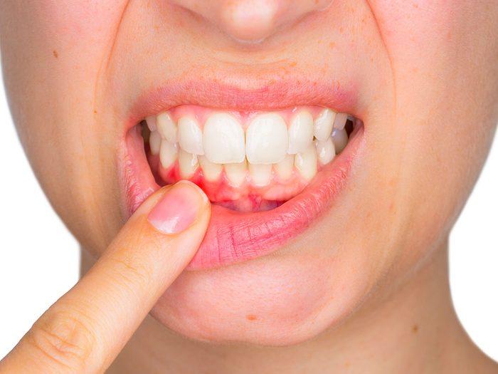 Si vos gencives sont irritées, enflées et saignent régulièrement, vous souffrez sans doute de cette maladie des gencives nommée gingivite.