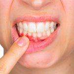 Comment soigner une gingivite: 10 remèdes maison efficaces