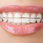 11 choses que votre orthodontiste ne vous dira pas