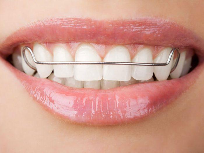 L'orthodontiste évitera de vous dire que vous devrez porter un appareil dentaire une fois votre traitement terminé.