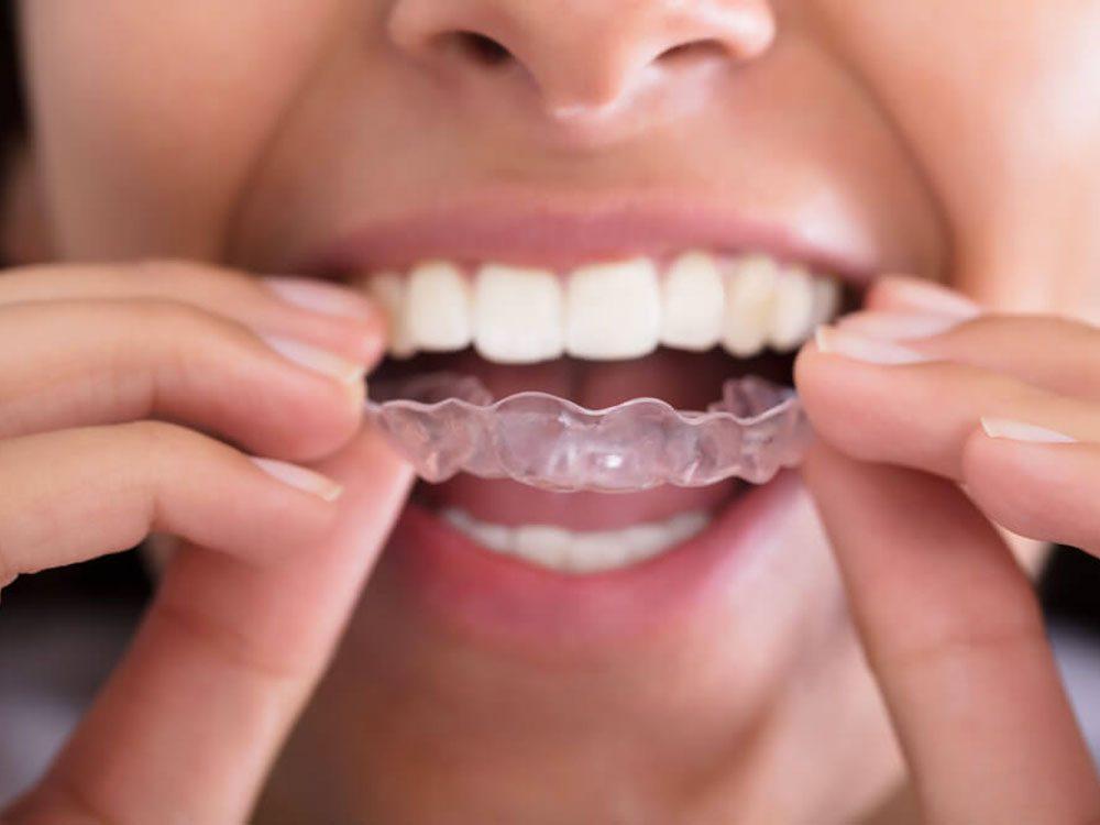 L'orthodontiste évitera de vous dire qu'il sait quand vous n'avez pas porté votre gouttière.