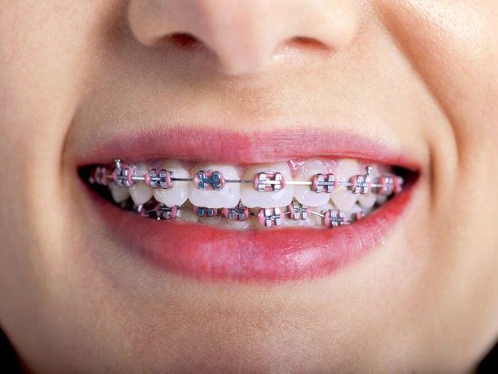 L'orthodontiste évitera de vous dire que quelqu'un d'autre a peut-être utilisé votre appareil dentaire avant vous.