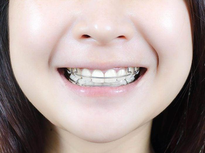 Même si vous pensez que votre enfant n'a pas besoin d'orthodontie, faites-le voir quand même.