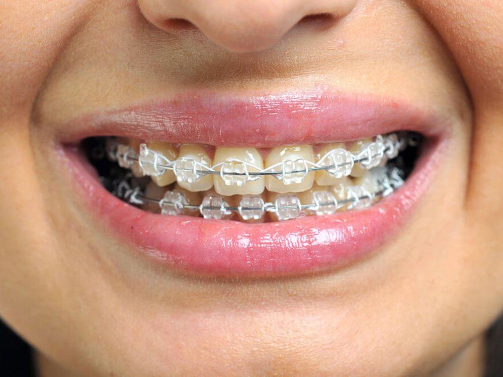 L'orthodontie n'est pas uniquement esthétique.