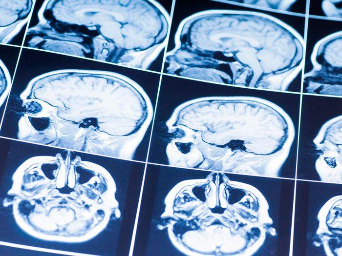 Avec un verre de vin par jour, votre cerveau pourrait rester alerte plus longtemps.