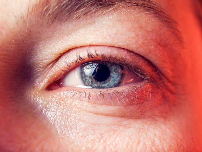 Santé des yeux: des yeux humides ou larmoyants peuvent être un signe d'allergie.