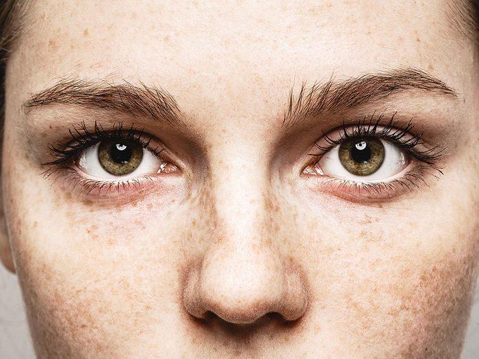Santé des yeux: perte de vision périphérique.