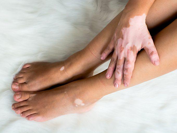 Le vitiligo est une affection cutanée.